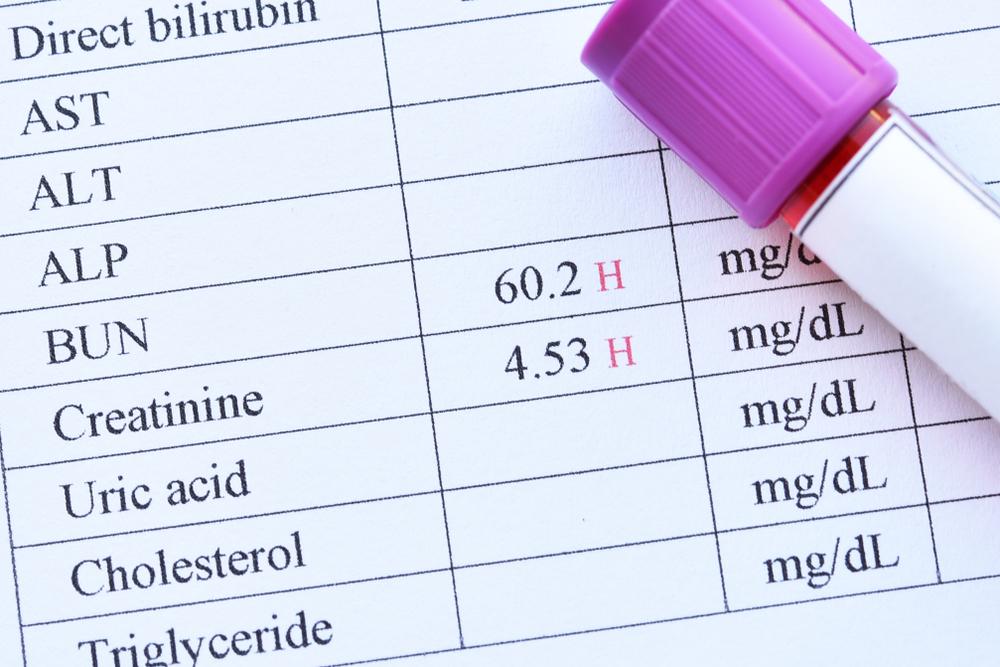 ADHD新薬「ビバンセカプセル」と旧薬「ストラテラ・コンサータ」の違い